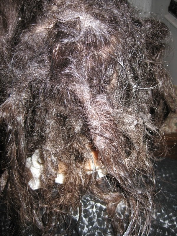 Removed Before Before Dreadlocks Removal