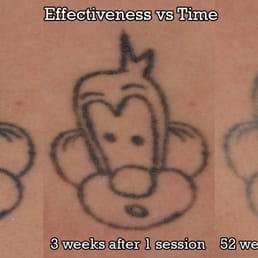 Fade Fast Laser Tattoo Removal - 11 Photos - Tattoo Removal - 2875 E ...
