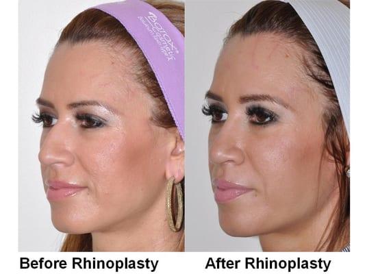 Broken Nose Rhinoplasty Female Nose Job Rhinoplasty