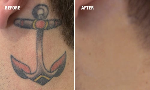 Delete Tattoo Removal & Laser Salon - Tattoo Removal Results: Before ...