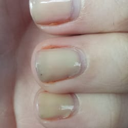 Dana's Nail Salon - This is my gel manicure 1 week and 3 days later ...