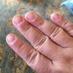 Tricycle Nails - Bleeding cuticles, damaged nails, all the work of Tricycle Nails. - Arlington, WA, Vereinigte Staaten