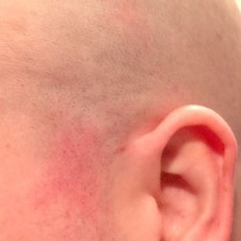 how to clear up razor burn