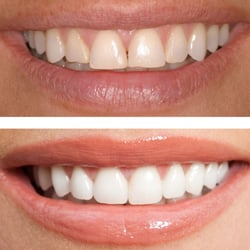 The Vale Dental Practice, London