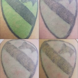 ... Tattoo Removal And Skin Aesthetics - Tattoo Removal - Fort Worth, TX