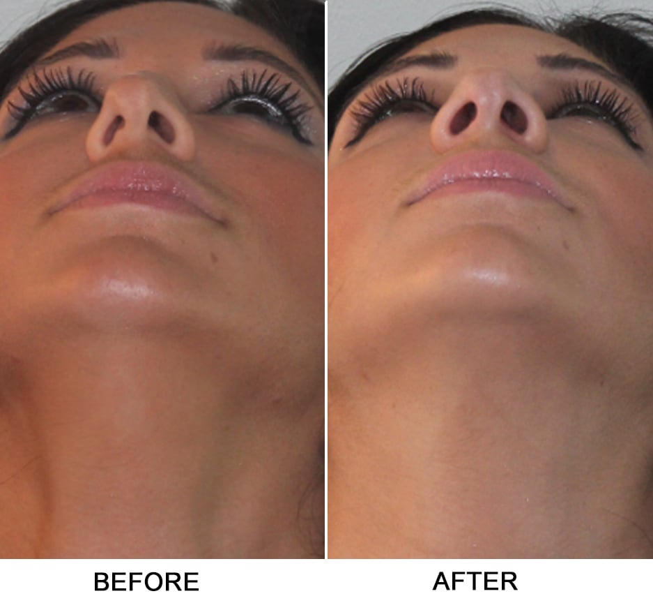Julian De Silva MD, London- UK Facial Plastic Surgery