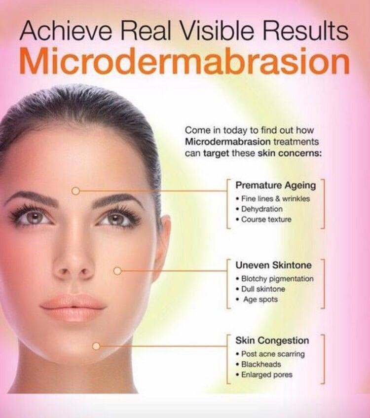 Diamond Microdermabrasion Facial Reviews