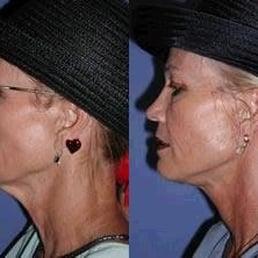 Neck Lift Surgery Yelp
