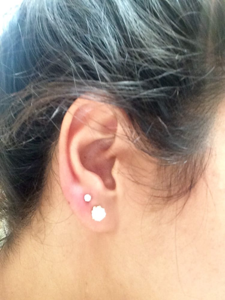 2nd Hole Ear Piercing Still A Little Red Yelp