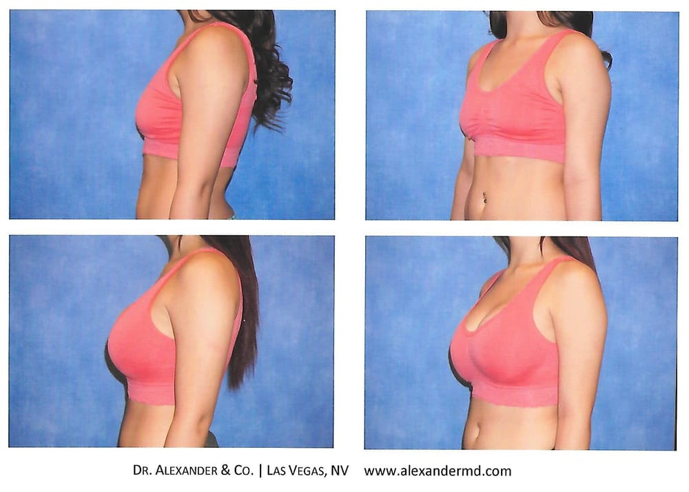 Breast Augmentation with 450cc silicone gel