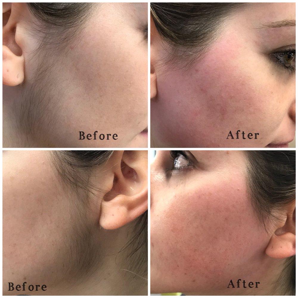 Facial Hair Threading Sides Yelp