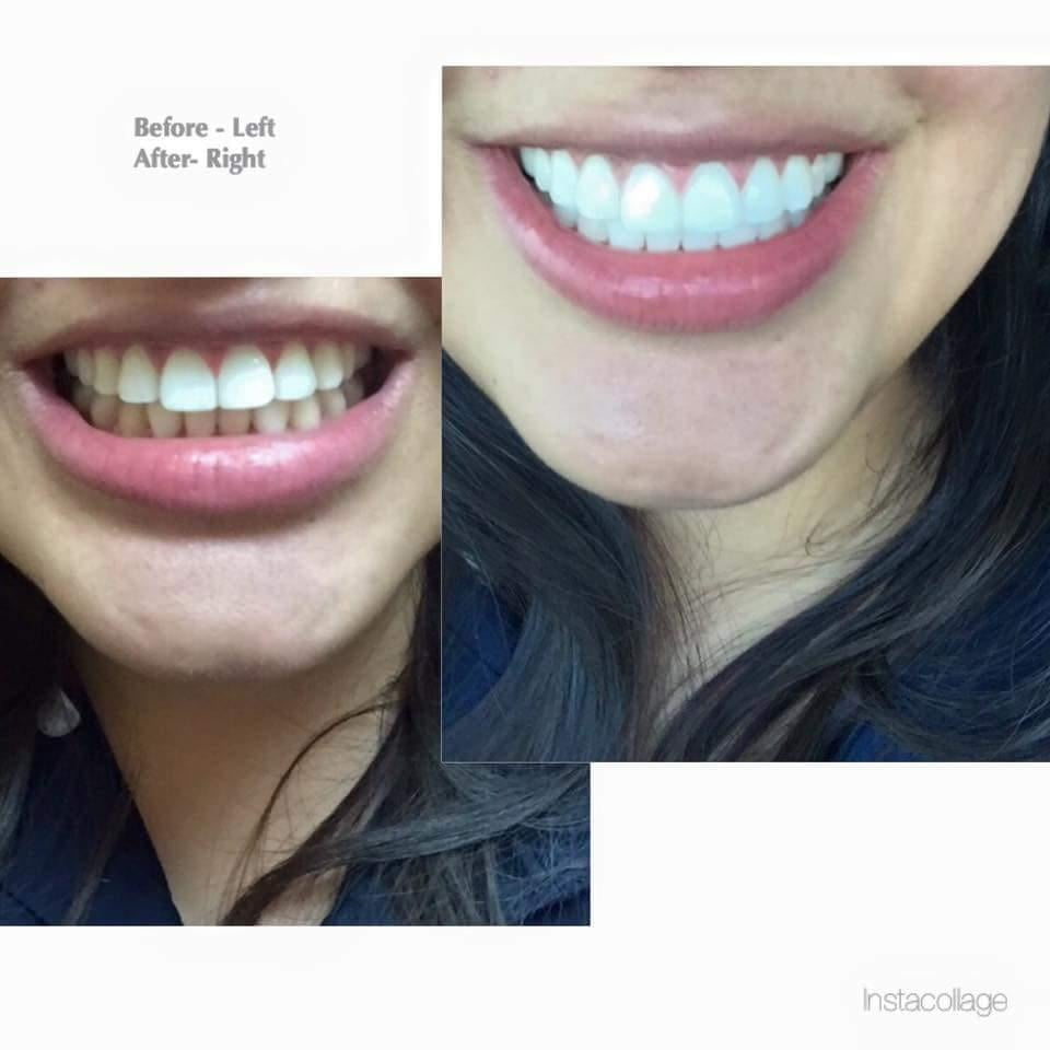 Before And After A Zoom Whitening Treatment Yelp