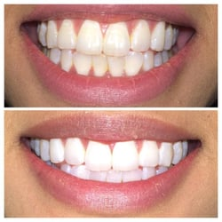 Photo Of Glow Teeth Whitening Denver Co United States Are You A