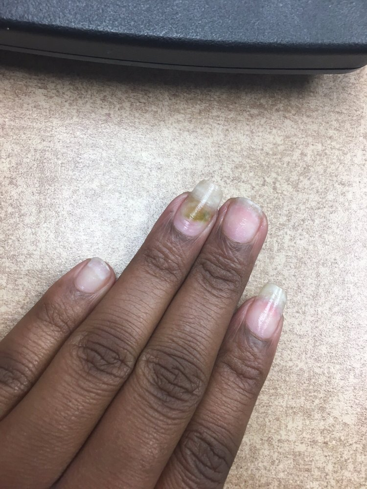 The nail fungus I\'ve received from Express Nails in Brandywine, MD ...