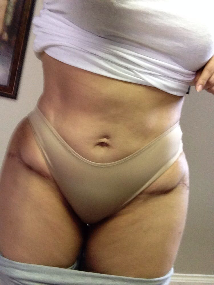 how to lose excess belly skin