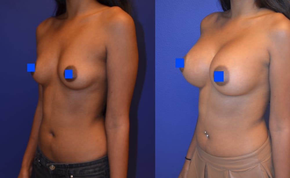 Breast augmentation, breast expansion and boob job: