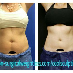 Magnolia Sculpting - 30 Photos & 31 Reviews - Weight Loss ... on