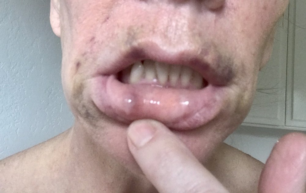 bruised with a swollen bump on the inside of my lip yelp
