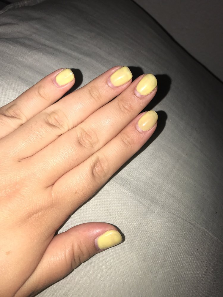 Nail Polish Turned My Nails Yellow - Creative Touch