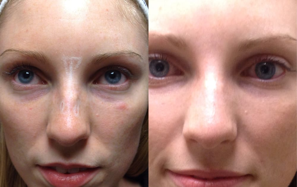 Non-surgical nose job with Bellafill (Artefill) Dermal Filler  - Yelp