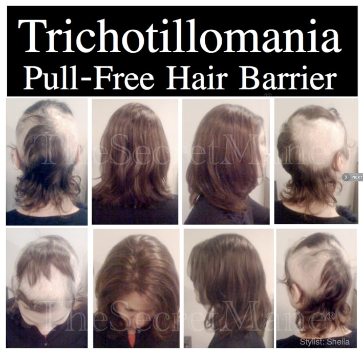 Trichotillomania Hair Styles Delectable Trichotillomania Hair Barrier  Yelp