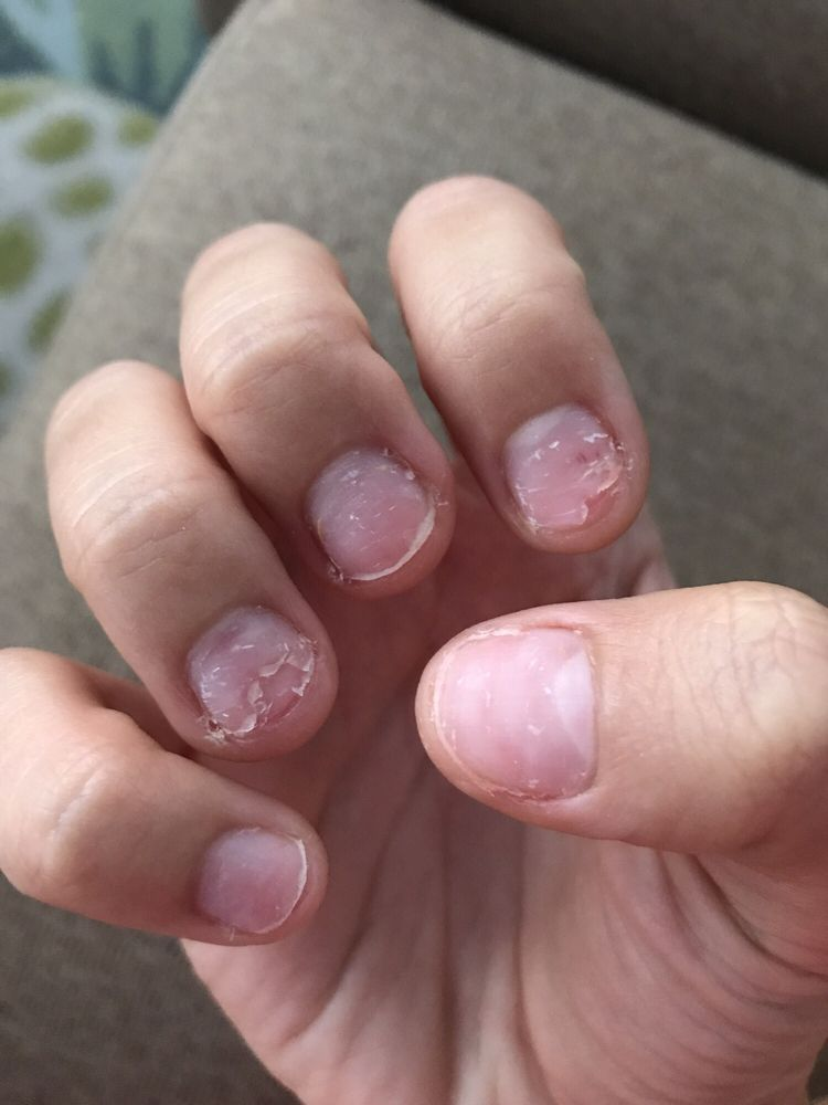 nail tech ripped my acrylics off instead of soaking them off. told ...