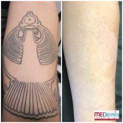 Photo Of Medermis Tattoo Removal San Antonio Tx United States After
