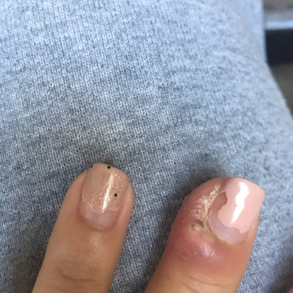 Cuticle infection from dirty tools. Never go here. - Yelp