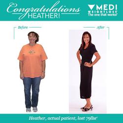 Medi Weightloss 12 Reviews Weight Loss Centers 3828 Sepulveda