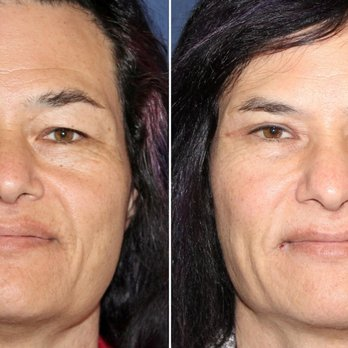 Brian Windle, MD - 14 Photos & 18 Reviews - Cosmetic Surgeons - 1700