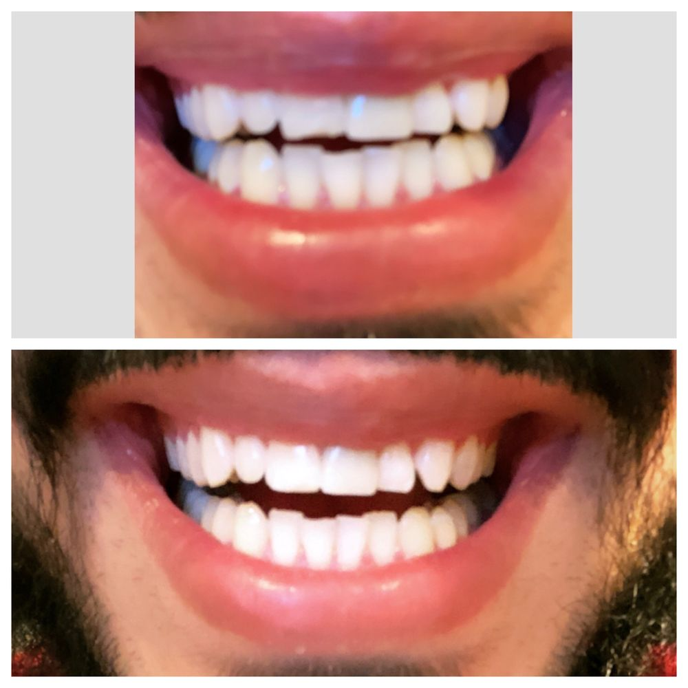 Smiles Cafe Dentistry