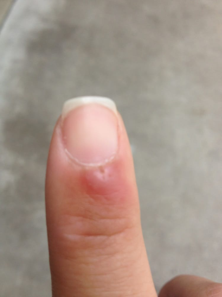 Infection caused by a cut at VIP nails a week later... - Yelp