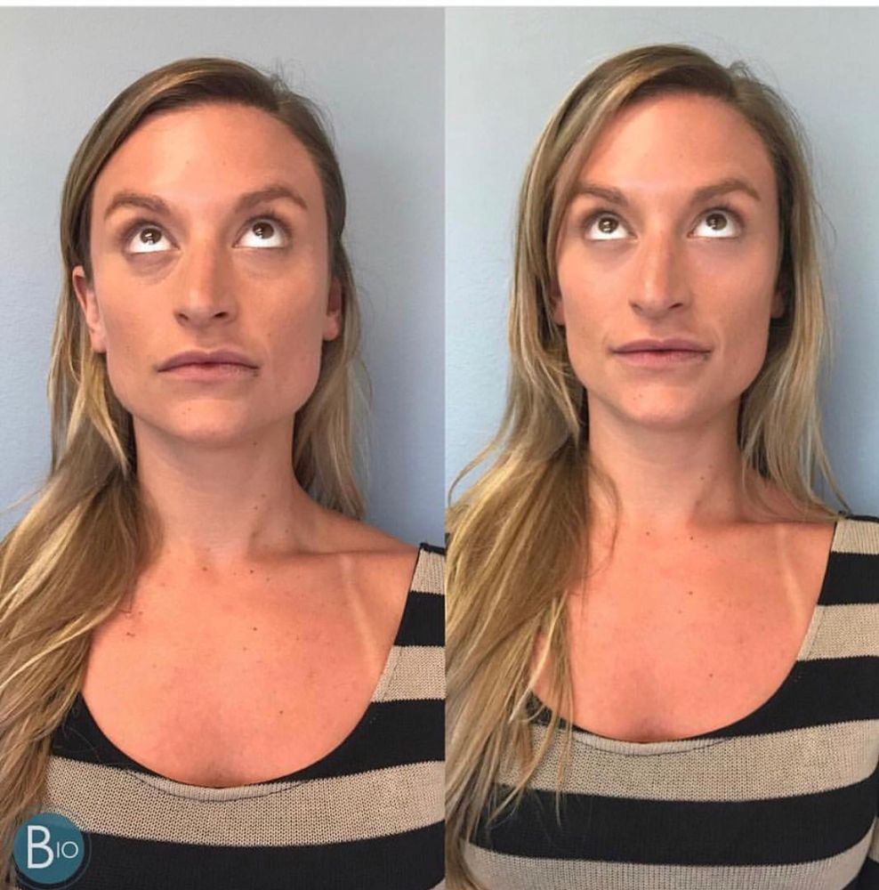 Before & After just one syringe of Juvederm Vollure on this