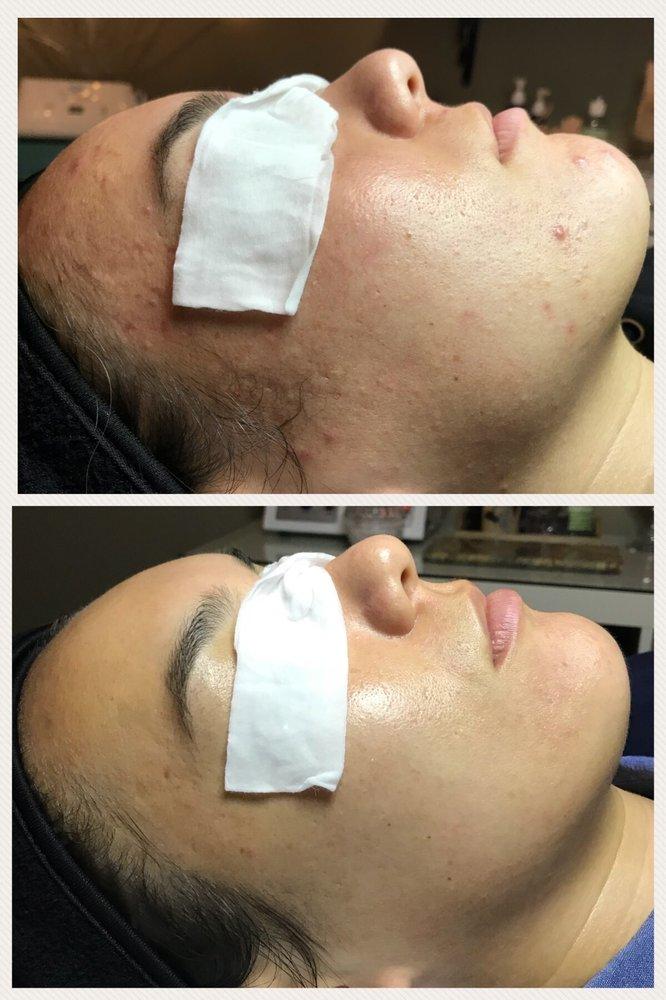 Skin Solutions by Wendi: 3023 McDaniel Ln, Newark, DE