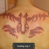 Brooklyn Laser Tattoo Removal - 21 Photos - Tattoo Removal - 2615 E ...