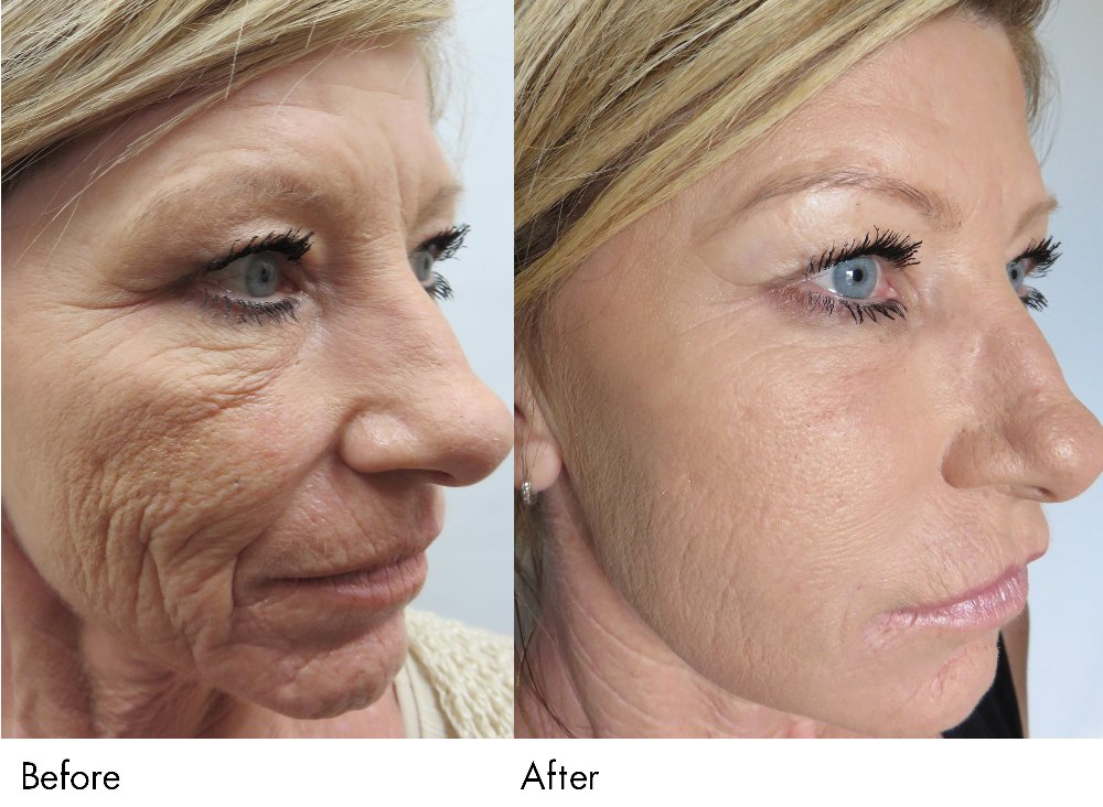 Micro-needling -Before & After  - Yelp