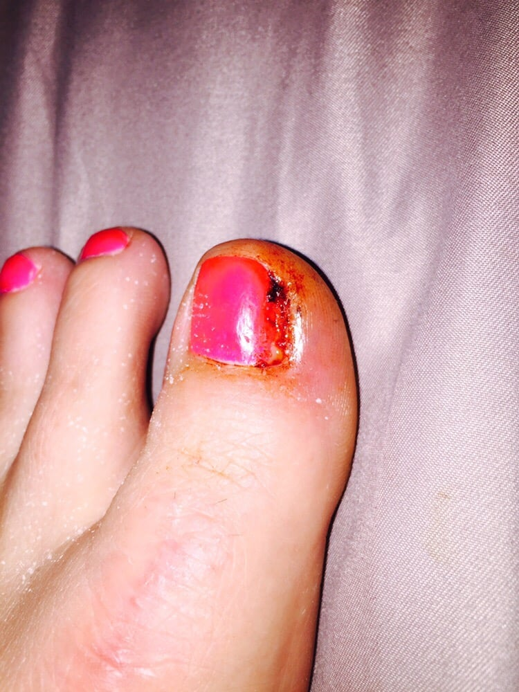 Day 1 After Removing Part Of My Toenail From Staph Infection And On A Different Antibiotic Yelp