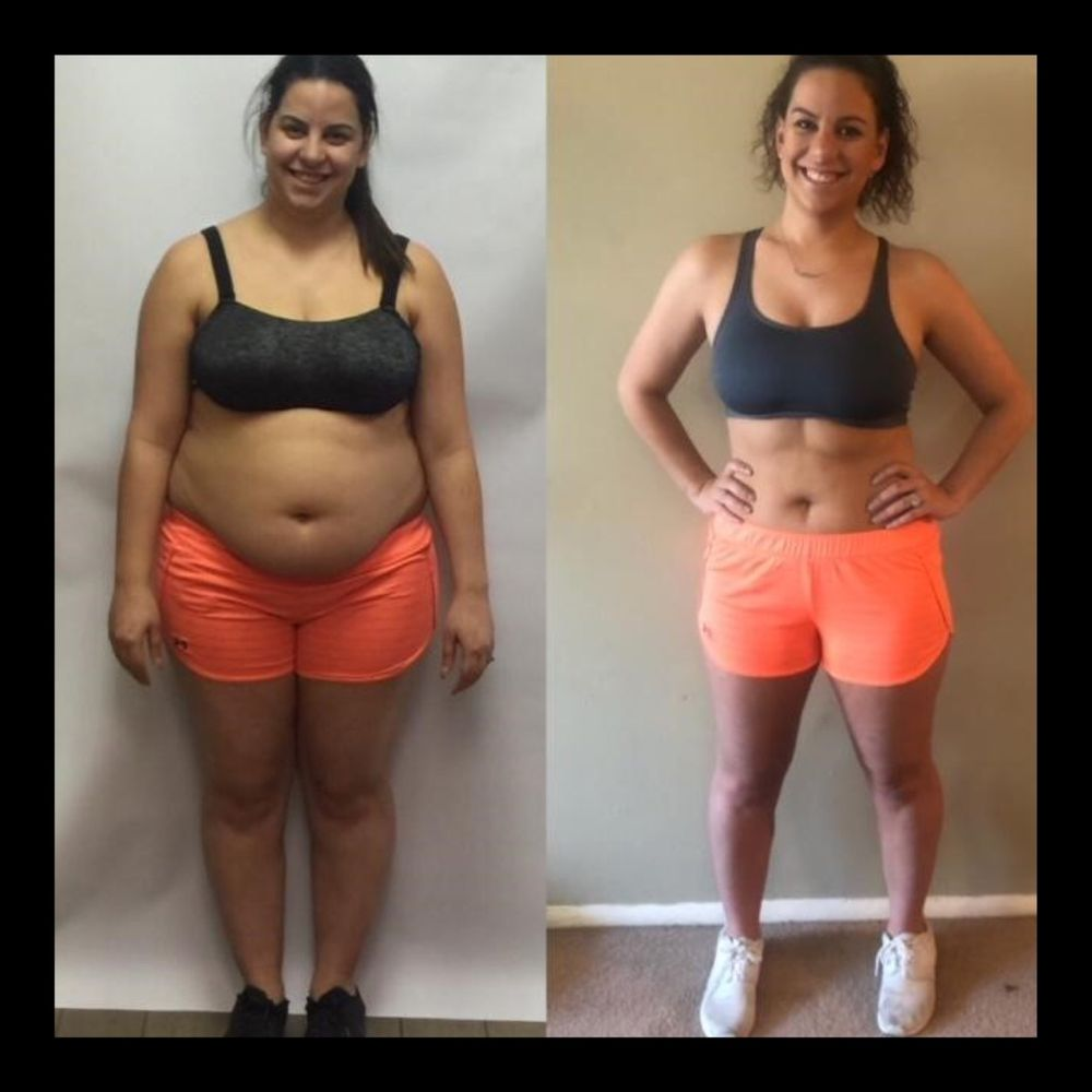 B1 injections weight loss picture 8