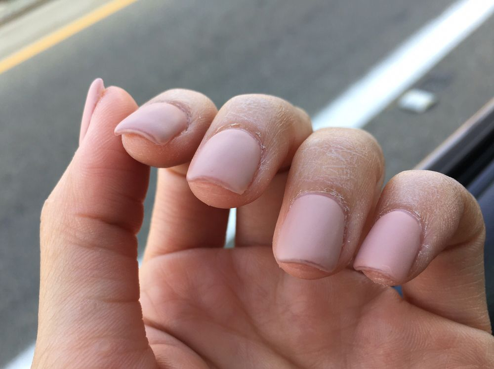 how to fix uneven nails