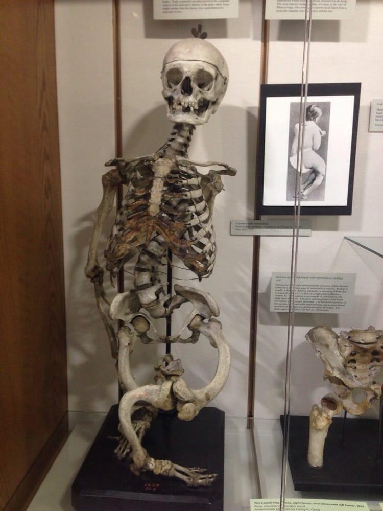 Photos For Warren Anatomical Museum Yelp
