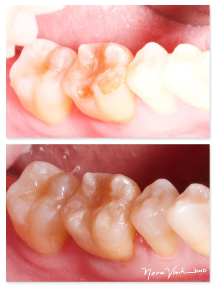 worn down enamel exposes the soft layers underneath causes