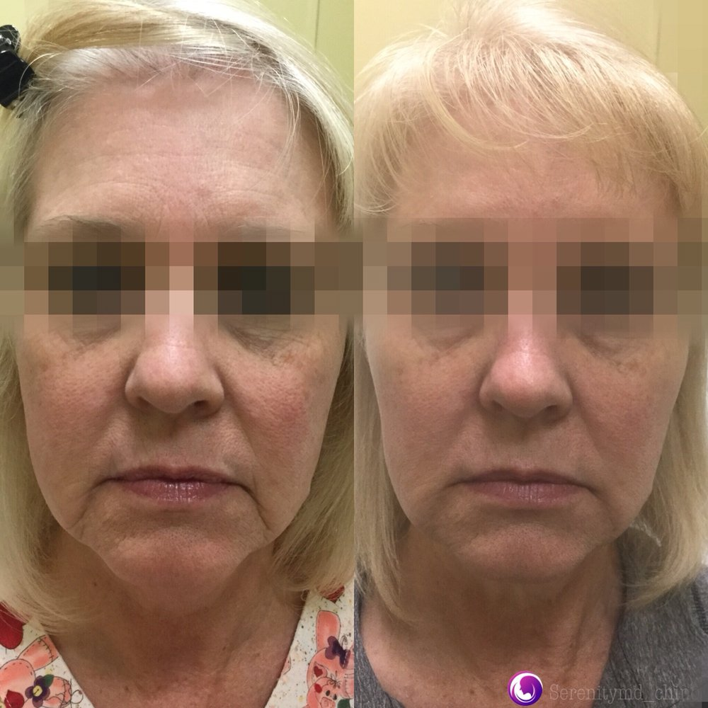 Juvederm for softening of marionette, tear trough