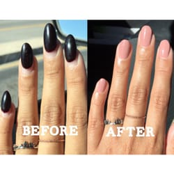 Photo Of The Nail Fix Santa Clarita Ca United States My Before