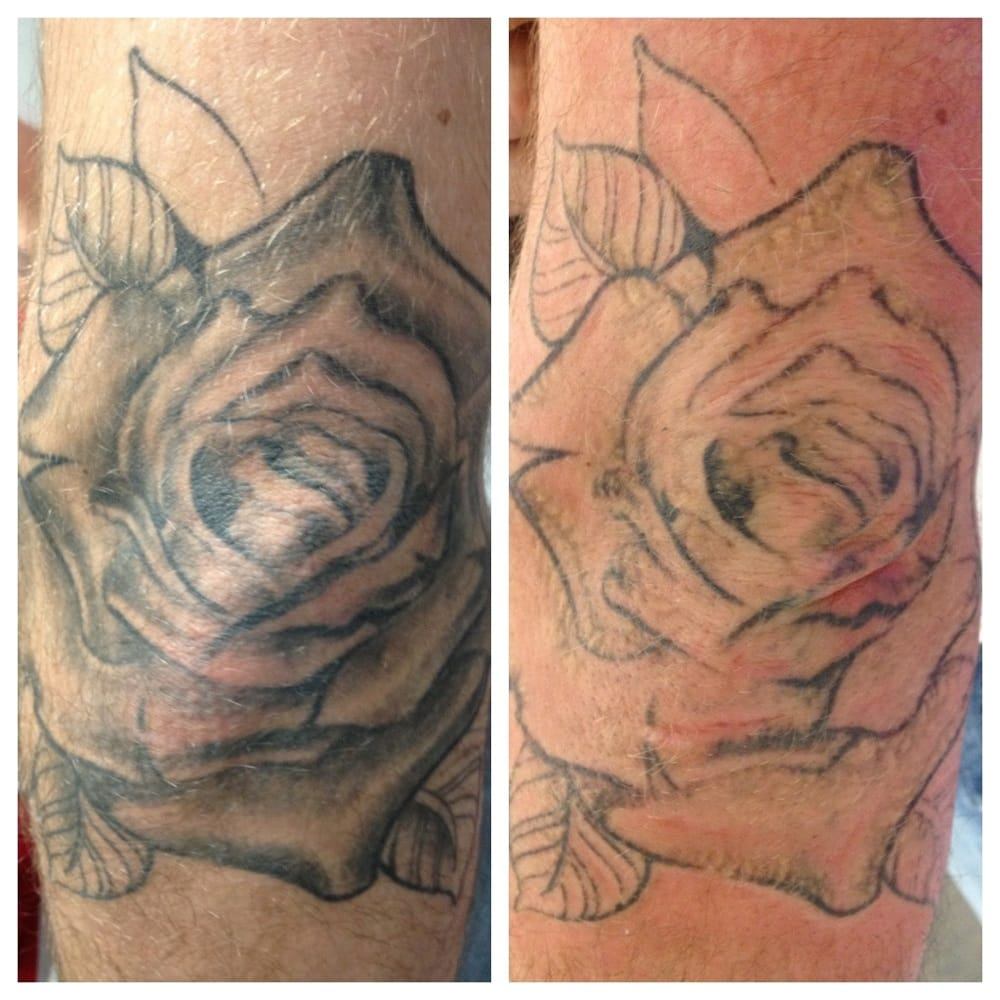 One treatment results may vary for each person yelp for Laser tattoo removal chicago