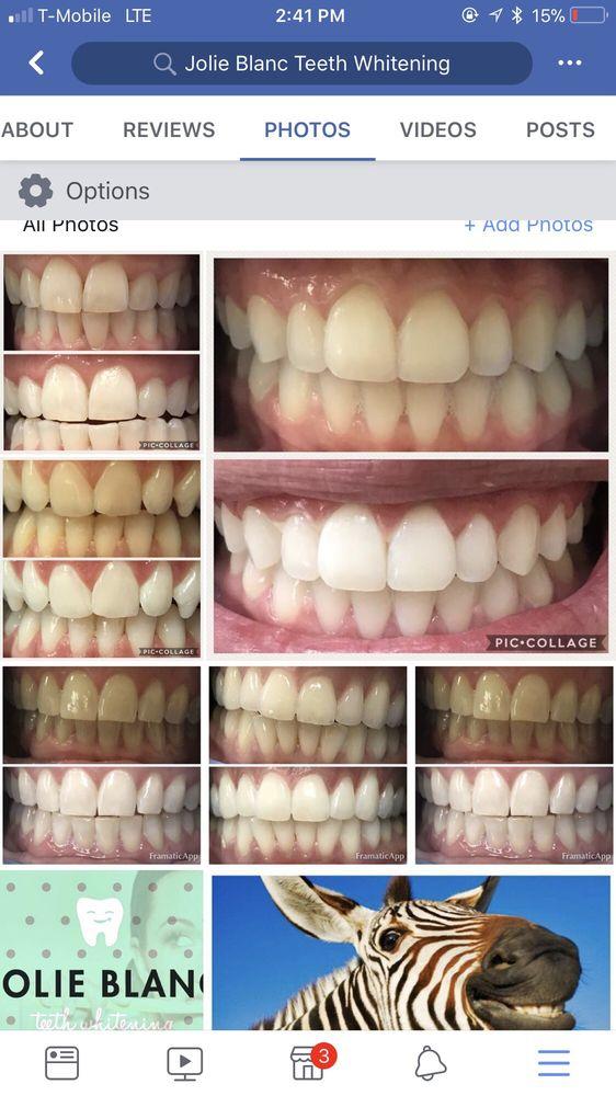 Jolie Blanc Teeth Whitening: 3419 S Coulter St, Amarillo, TX