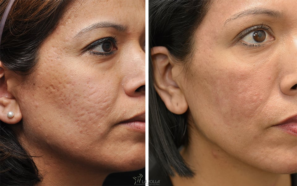 Acne Scar Subcision Treatment At La Jolla Cosmetic Laser