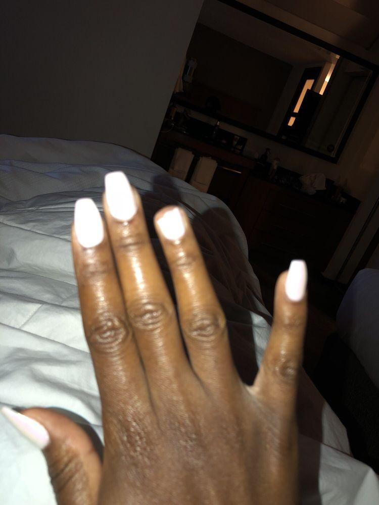 Photo Of Exquisite Nails Tucson Az United States Right Ring Finger Broke