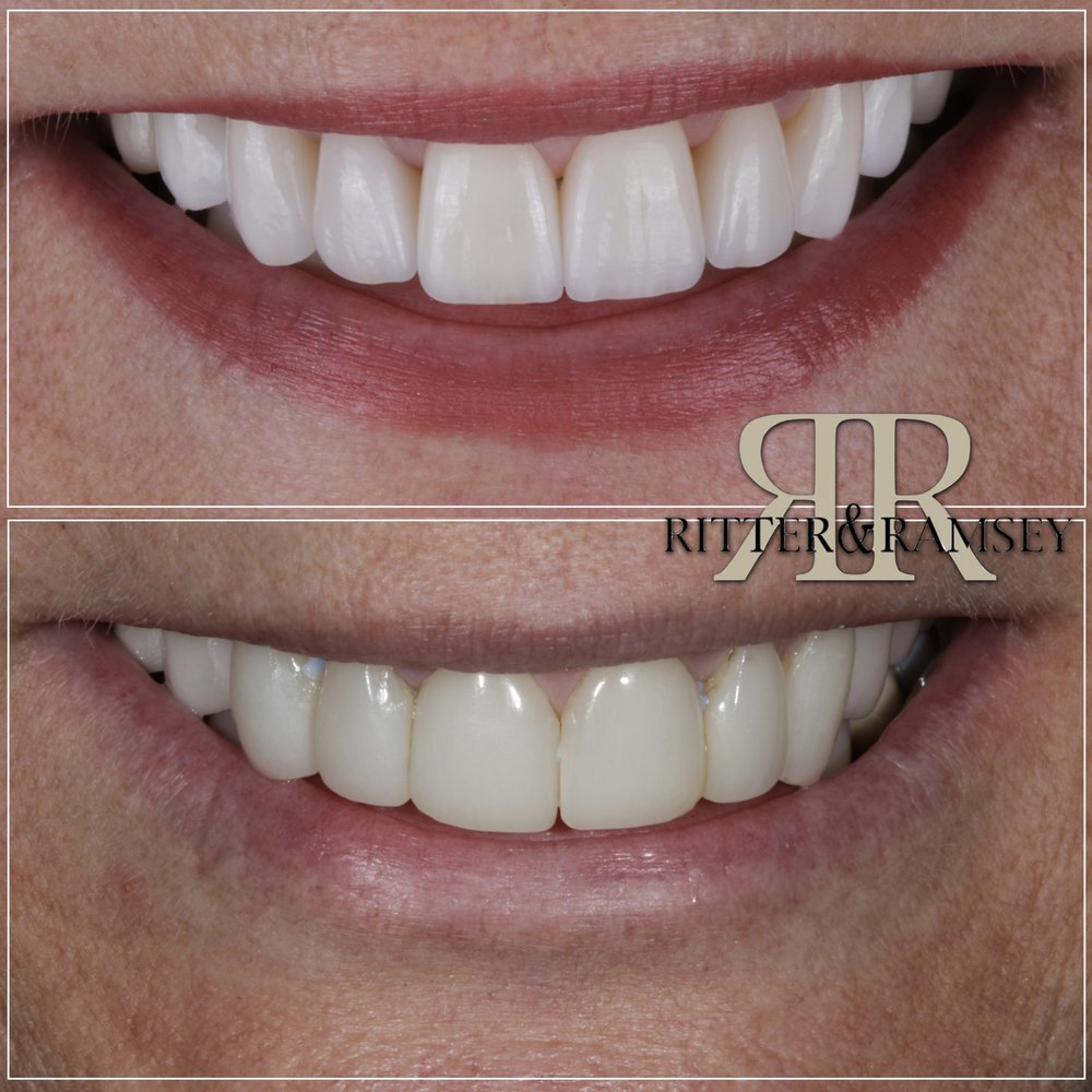 Ritter and Ramsey General and Cosmetic Dentistry