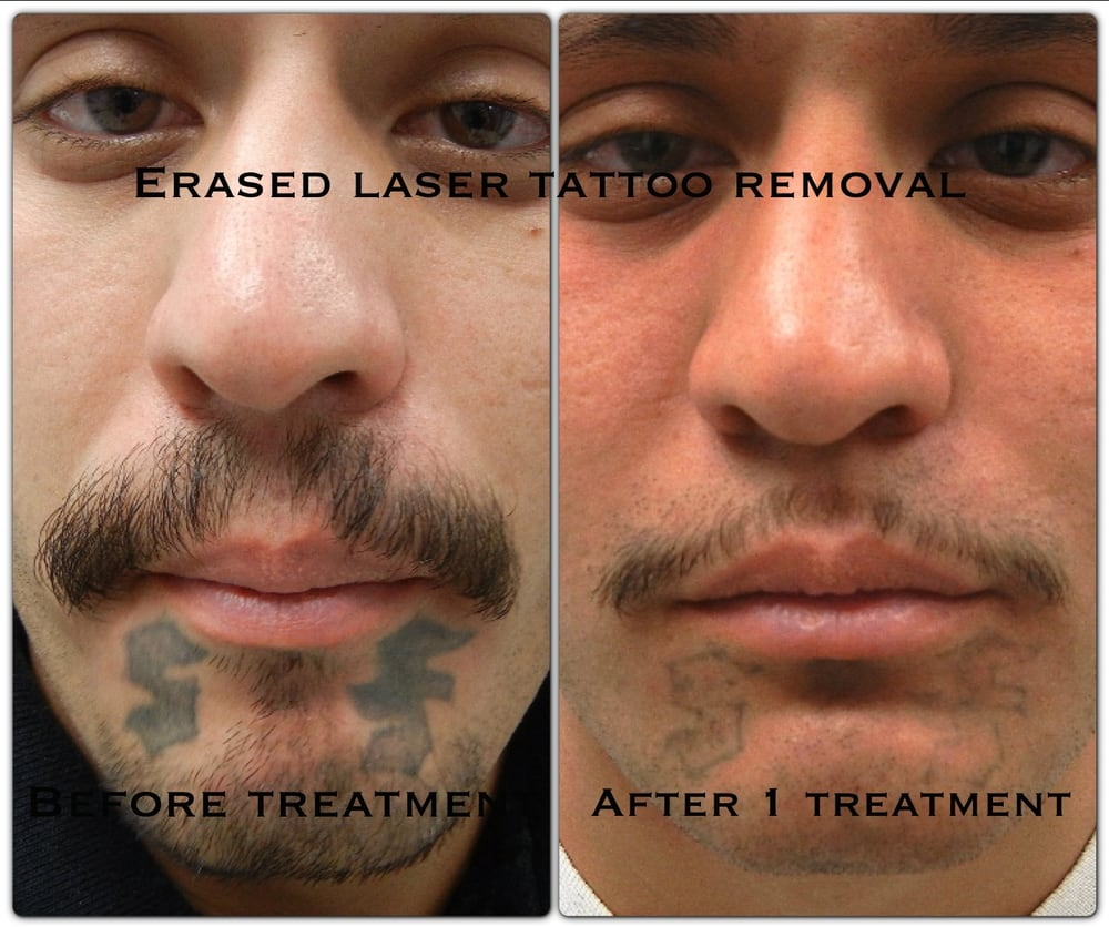 After The 1st Treatment Erased Tattoo Removal Las Vegas