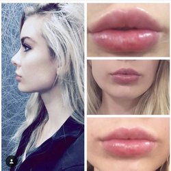 Photo Of Md Advanced Skincare Houston Tx United States Lip Augmentation With